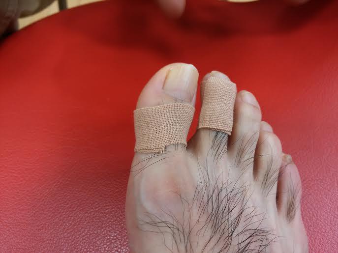 辻岡貼り足指